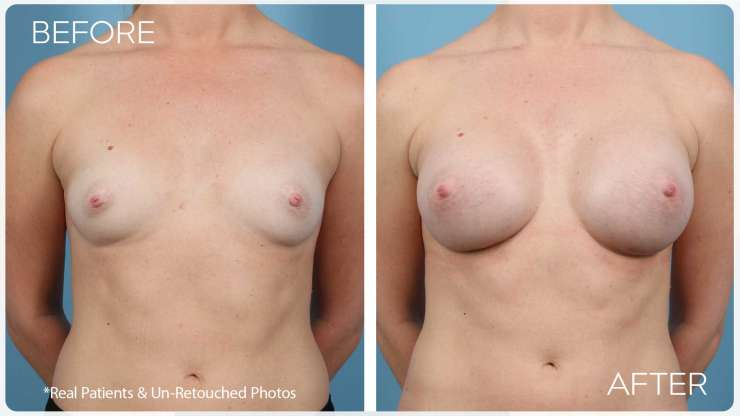 Age 27 Female Breast Augmentation Case 876 Before/After