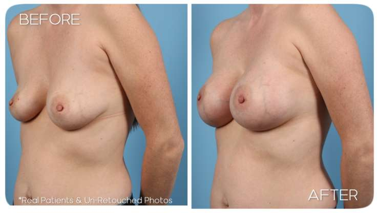 Age 36 Female Breast Augmentation Case 89 Before/After