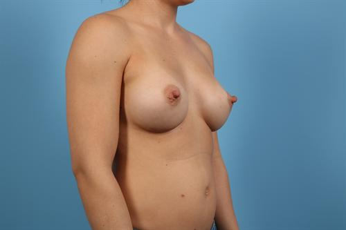 Age 33 Female Breast Augmentation Case 3 Before/After