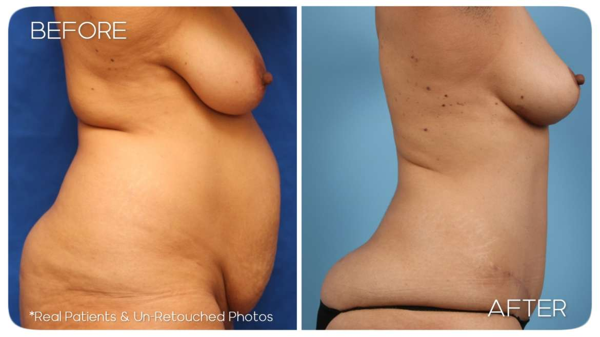 Age 50 Female Mommy Makeover, Abdominoplasty Liposuction Case 135 Before/After