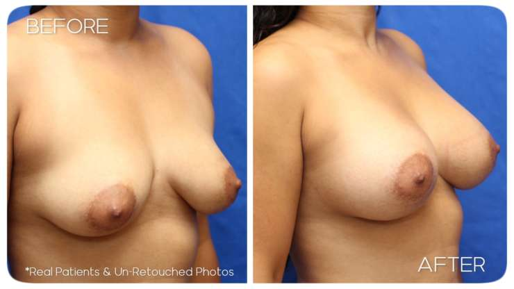 Age 27 Female Breast Augmentation Case 182 Before/After