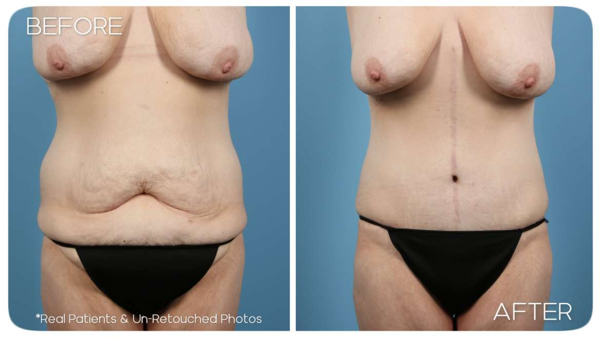Age 36 Weight Loss Makeover Case 237 Before/After