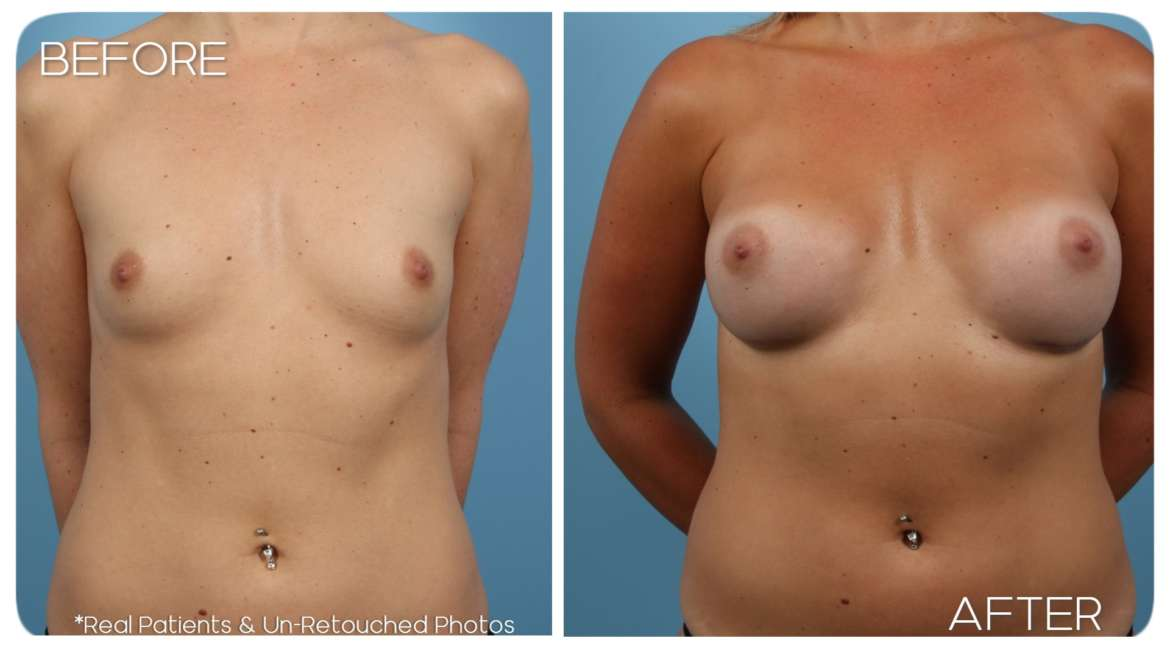 Age 34 Female Breast Augmentation Case 242 Before/After