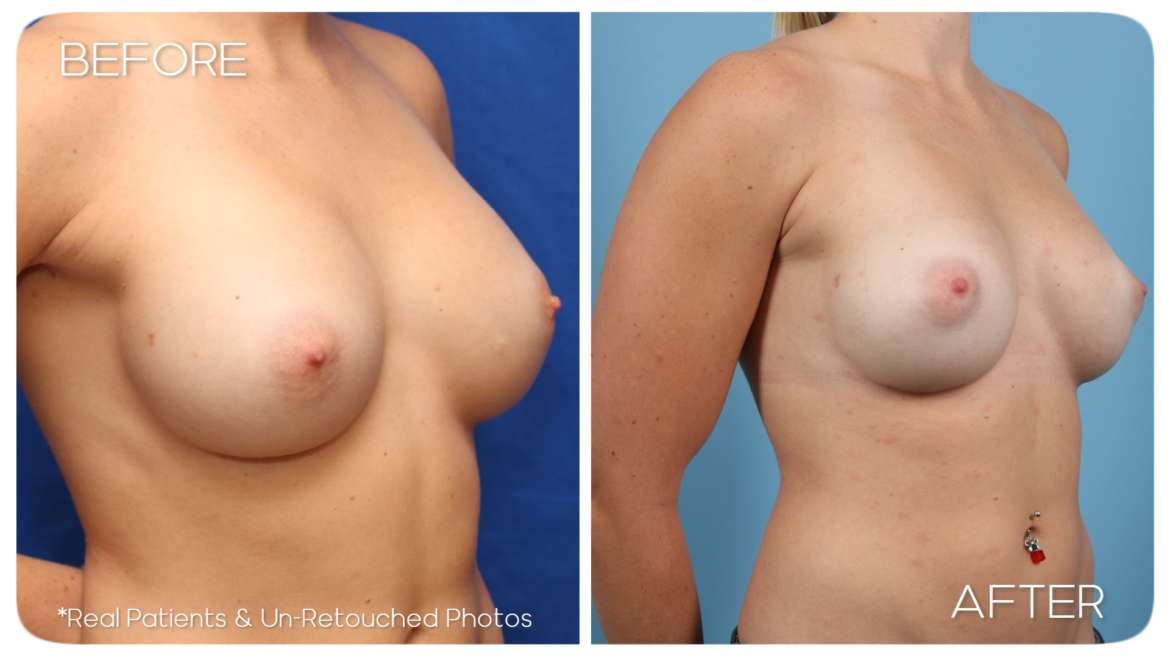 Age 30 Female Breast Implant Exchange Case 57 Before/After