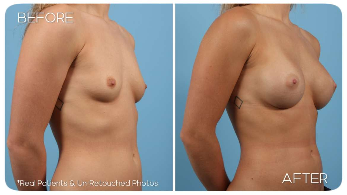 Age 25 Female Breast Augmentation Case 997 Before/After