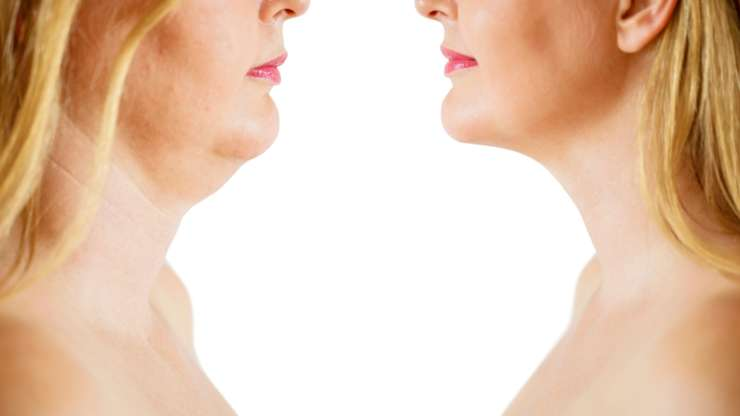 How Does Kybella Treatment Work?