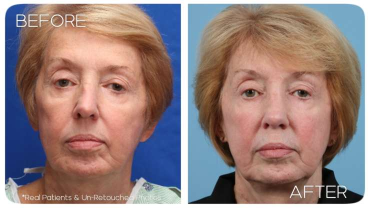 Age 68 Rhinoplasty Case 2 Before/After