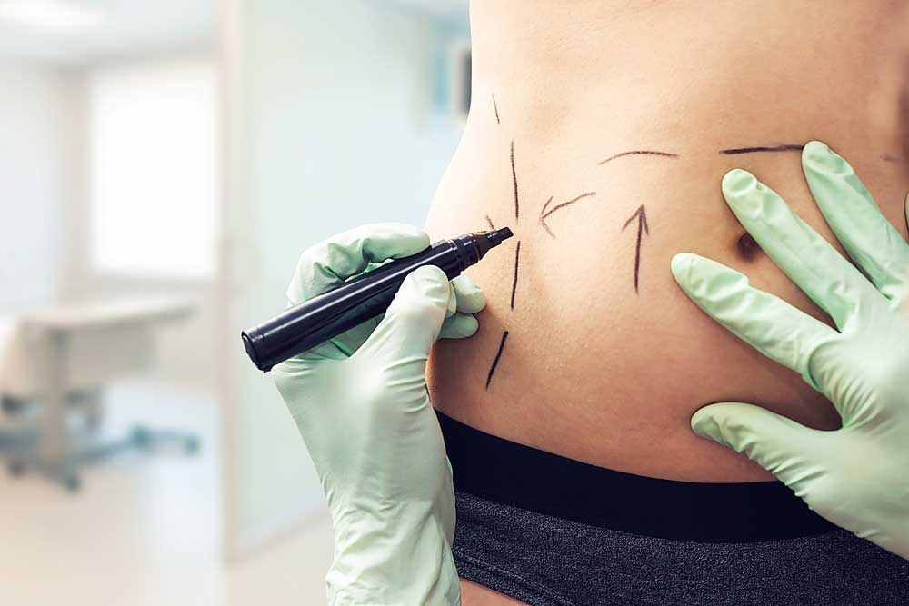 What is a Tummy Tuck and how is it done?